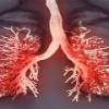 Плеврит легких - симптомы и методы лечения плеврита