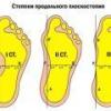Плоскостопие 1-й, 2-й, 3-й, 4-й степени: причины, лечение