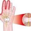 Почему немеет средний палец на правой руке?