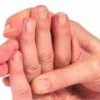 Почему немеют пальцы левой руки, причины