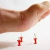 Почему немеют пальцы на правой ноге?