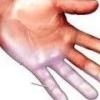 Почему немеют пальцы на руках?