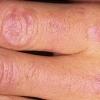 Полимиозит - причины, симптомы и лечение
