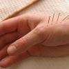 Полиневропатия - причины, симптомы и лечение