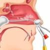Полипы носа - причины, симптомы, диагностика и лечение