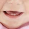 Понос при прорезывании зубов у малышей