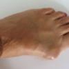 Поперечное плоскостопие: симптомы, лечение