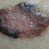 Поверхностная меланома: признаки, причины развития, методы лечения