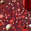 Повышенное содержание тромбоцитов в крови