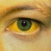 При каком гепатите развивается желтуха?