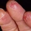 Причины и лечение трещин на руках и пальцах рук