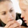 Причины носового кровотечения. Первая помощь при носовом кровотечении