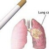 Причины рака легких у курильщиков