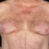 Причины возникновения гинекомастии