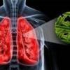 Причины возникновения туберкулеза легких