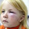 Признаки и лечение анафилактического шока