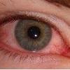 Проявления аллергического конъюктивита и методы его лечения