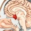 Пролактинома - причины, симптомы, диагностика и лечение