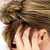 Прыщи на голове – как от них избавиться?