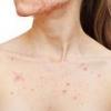 Прыщи на груди: причины, симптомы, лечение