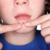 Прыщи на подбородке: причины появления и методы лечения