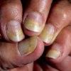 Псориаз ногтей на руках и ногах, лечение
