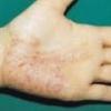 Пустулезный псориаз, лечение