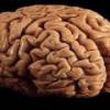 Рак головного мозга – причины, диагностика, прогноз