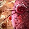 Рак крови симптомы
