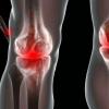 Реактивный артрит: симптомы и лечение