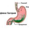 Рефлюкс гастрит: причины, симптомы, лечение