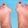 Ревматоидный полиартрит симптомы, лечение