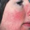 Розацеа на лице - причины, лечение