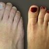 Шишки на ногах: причины, симптомы, лечение