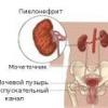 Симптомы хронического пиелонефрита у женщин, у мужчин