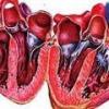 Симптомы и лечение алкогольной кардиомиопатии