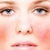 Симптомы и лечение аллергии на коже лица