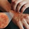 Симптомы и лечение атопического дерматита