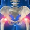 Симптомы и лечение трохантерита тазобедренного сустава