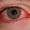 Симптомы и лечение вирусного конъюктивита