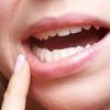 Симптомы и способы лечения кандидоза полости рта