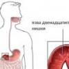 Симптомы обострения язвы двенадцатиперстной кишки