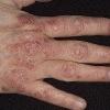 Симптомы псориаза: проявление заболевания на разных частях тела