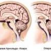 Синдром арнольда-киари: причины, симптомы, лечение