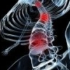 Синдром броун-секара: причины, симптомы, лечение