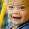 Синдром дауна: риски, анализ на синдром дауна