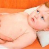 Синдром фрелиха, причины, симптомы, и лечение