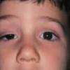 Синдром горнера: причины, симптомы, лечение