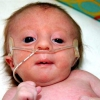 Синдром эдвардса: причины патологии