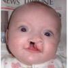 Синдром эдвардса: причины, признаки и лечение